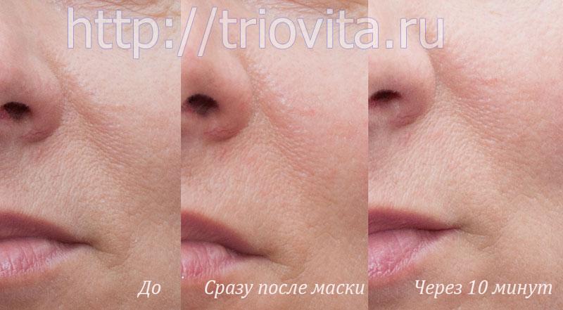 Мультипептидная маска Vision с коэнзимом Q10
