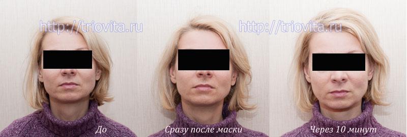 мультипептидная, успокаивающая, восстанавливающая маска Vision с коэнзимом Q10
