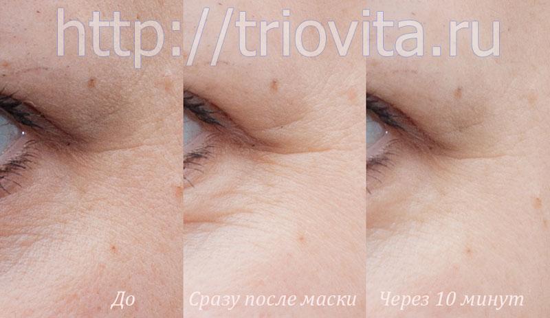 успокаивающая маска Vision для зоны вокруг глаз мгновенного действия с коэнзимом  Q10